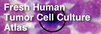 Fresh Human Tumor Cell Culture Atlas